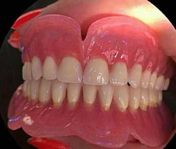 استخدام متحرک کار ماهر ( دندانساز ماهر )