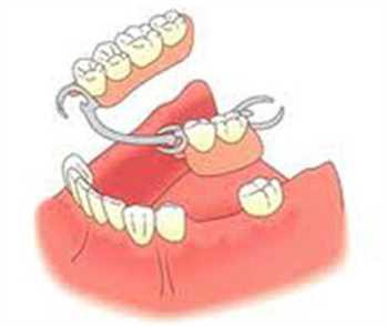 تعمیر دندان مصنوعی شکسته