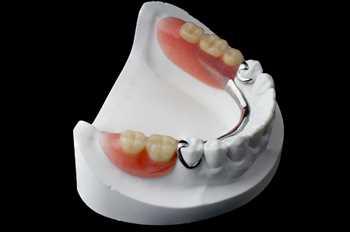 دندانسازی منطقه 4