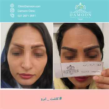 کاشت ابرو در پاسداران | کلینیک تخصصی پوست و مو در تهران